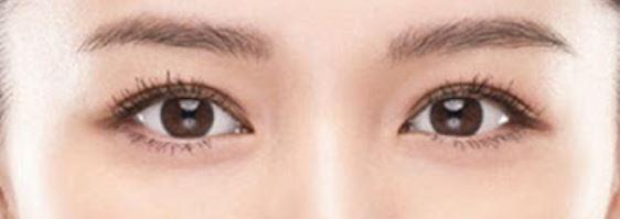 Night Eye Beaute夜用雙眼皮養成膠水